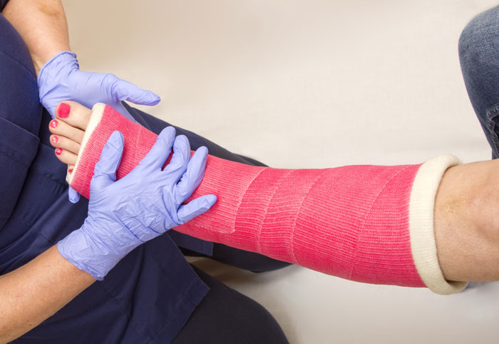 I have a splint or cast. What do I need to know about it?