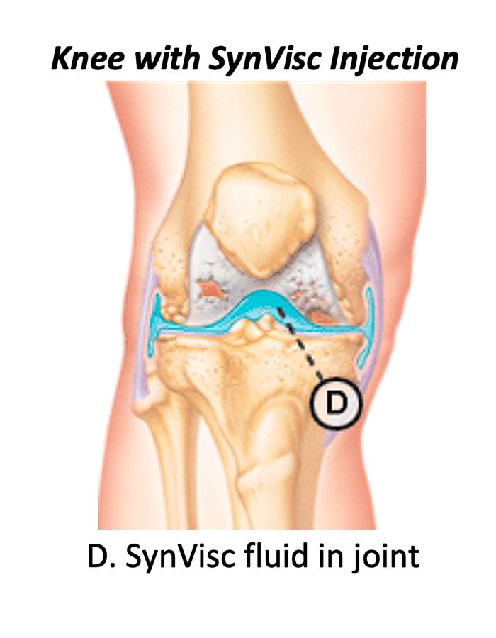 Knee_injury2